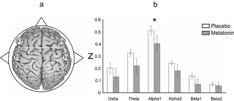 Melatonin Effects on EEG Activity During Sleep Onset in Mild