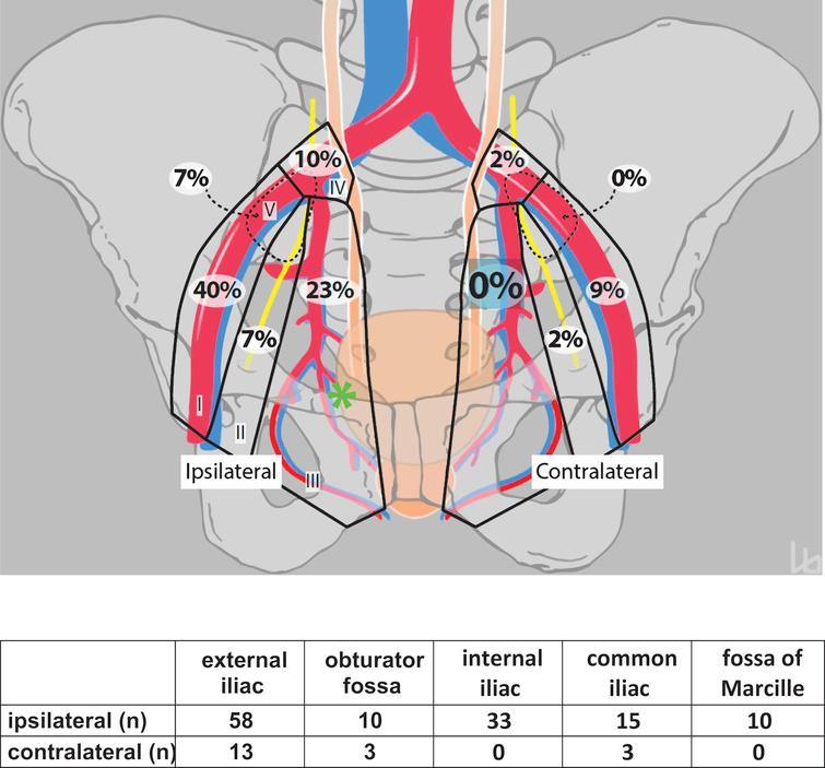 Pelvic Lymph Node Dissection May Be Limited On The Contralateral