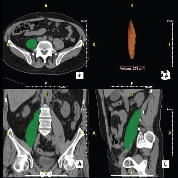 Change In Psoas Muscle Volume As A Predictor Of Outcomes In Patients
