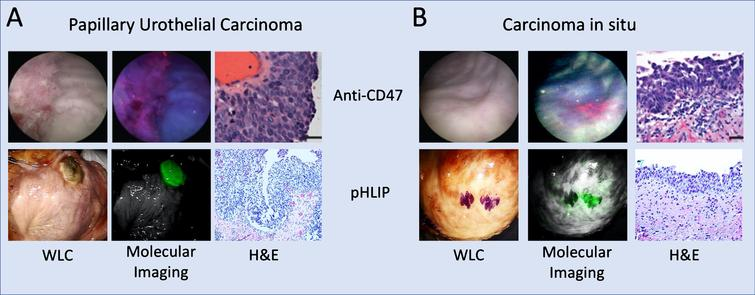 Molecular imaging of human bladder tumors. Ex vivo molecular imaging of human bladder using anti-CD47-Qdot625 (Anti-CD47) imaged with BLC and indocyanine green with pH low insertion peptide (pHLIP) agent imaged with da Vinci Si NIRF imaging system. The respective imaging systems for the two molecular imaging strategies are capable of detecting both (A) papillary tumors and (B) CIS with high sensitivity and specificity. Anti-CD47 images from [75], reprinted with permission from AAAS. pHLIP images obtained from [79] with permission from PNAS.