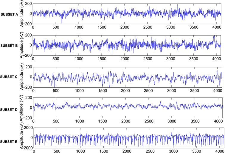 Epileptic seizure detection in EEG signal with GModPCA and support
