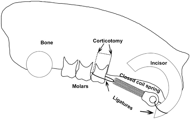 The Effects Of Nell On Corticotomy Assisted Tooth Movement And