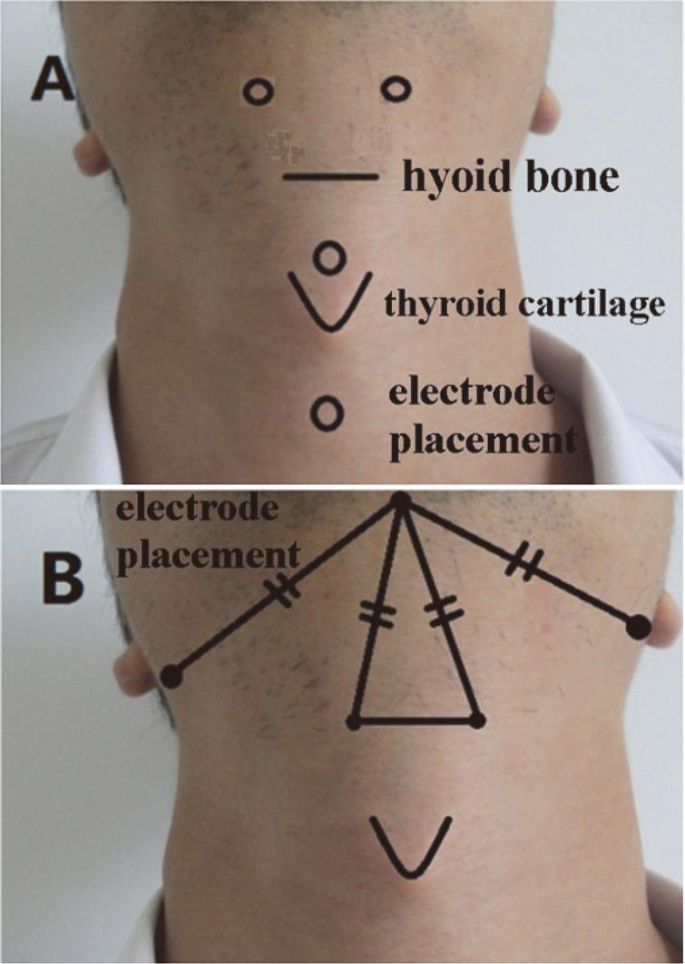 The Effect Of Surface Neuromuscular Electrical Stimulation