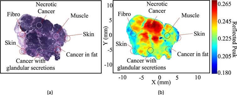 Cancer detection in excised breast tumors using terahertz
