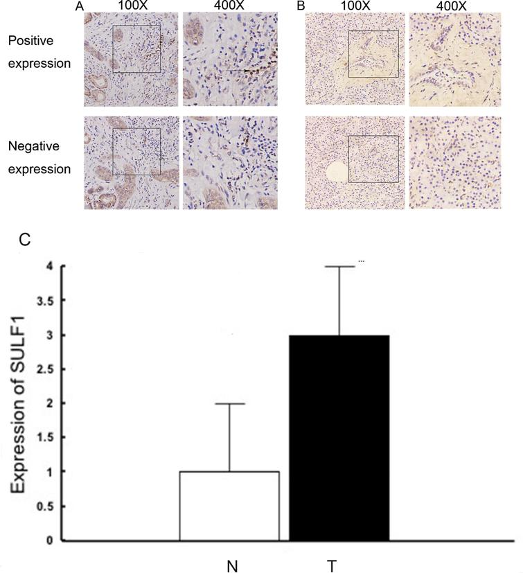 Sulfatase 1 Expression In Pancreatic Cancer And Its