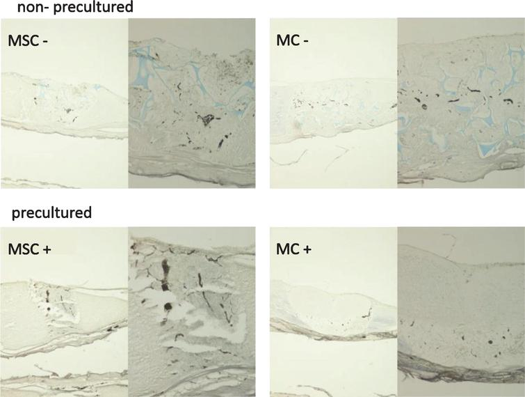 Do cell based tissue engineering products for meniscus