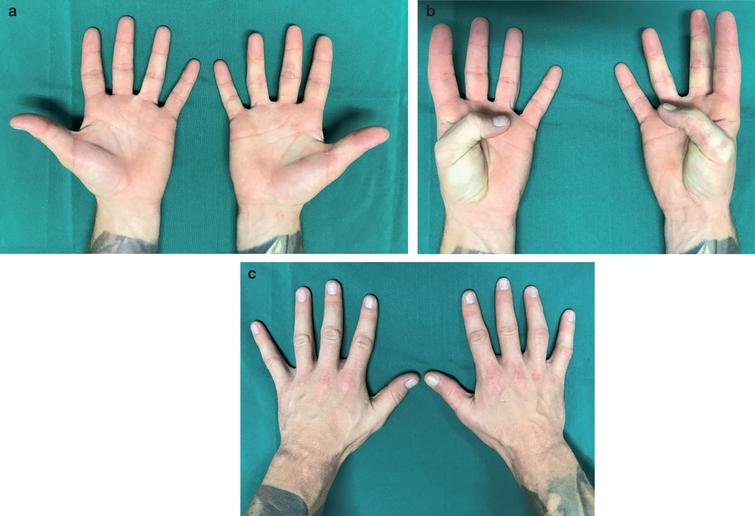 Replantation of a circumferentially degloved thumb in an