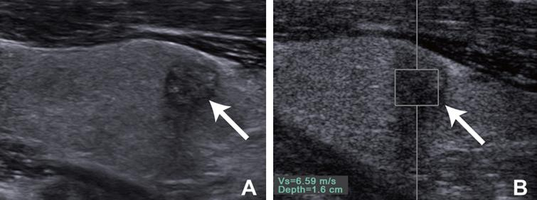 Guidelines and recommendations on the clinical use of shear wave