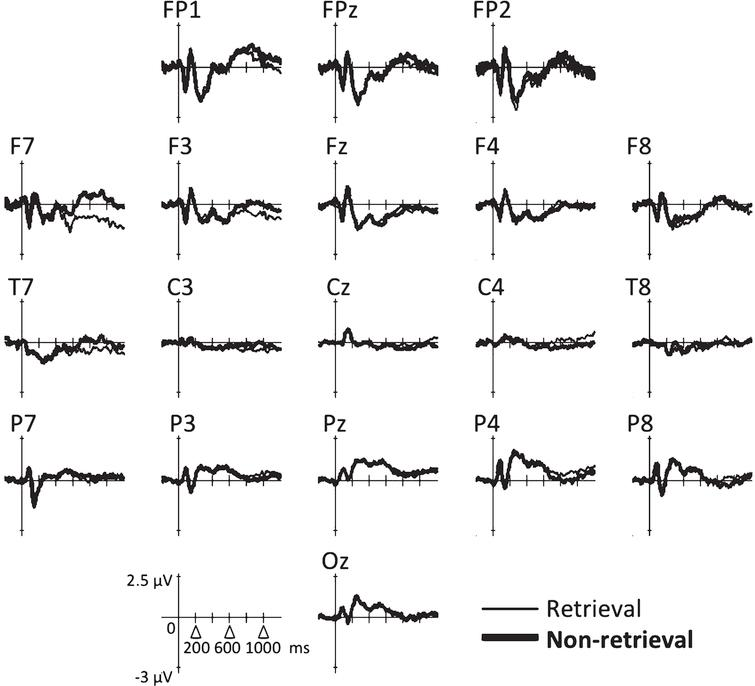 Altered Neural Activity during Semantic Object Memory