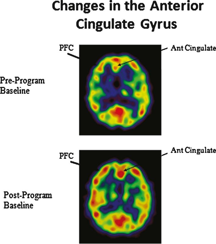 Enhanced cerebral blood flow in the prefrontal cortex (PFC) and anterior cingulate gyrus.