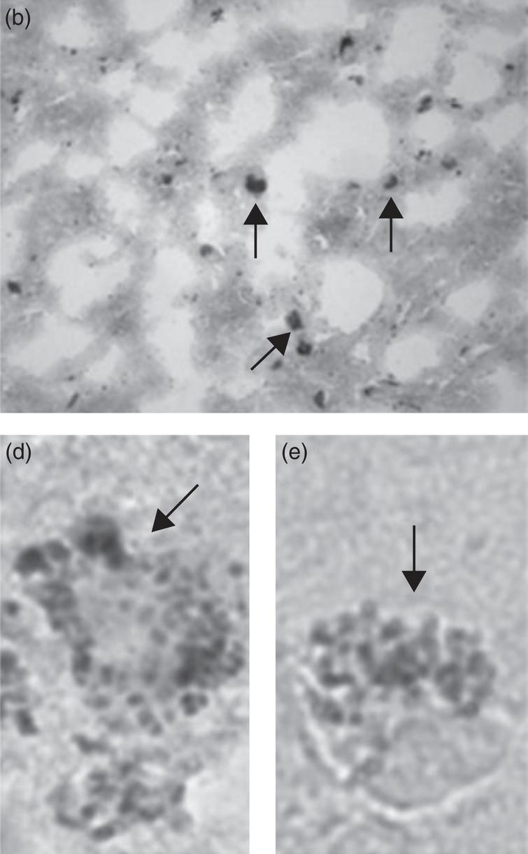 Images demonstrating Chlamydophila pneumoniae in AD brain tissue by in situ hybridization. Figure (b) demonstrates C.pneumoniae from the hippocampus of an AD brain by in situ hybridization. Figures (d) and (e) show photographic enlargement of cells harboring C.pneumoniae inclusions identified in AD brain tissue. Arrows indicate the signal for C. pneumoniae. Image (b) was obtained using a x40 objective. Figure from Gérard HC, Dreses-Werringloer U, Wildt KS, Deka S, Oszust C, Balin BJ, Frey WH 2nd, Bordayo EZ, Whittum Hudson JA, Hudson AP (2006) Chlamydophila (Chlamydia) pneumoniae in the Alzheimer's brain. FEMS Immunol Med Microbiol 48, 355-366 [7]. Copyright 2006. Reprinted with permission from John Wiley and Sons and permission from Brian Balin.