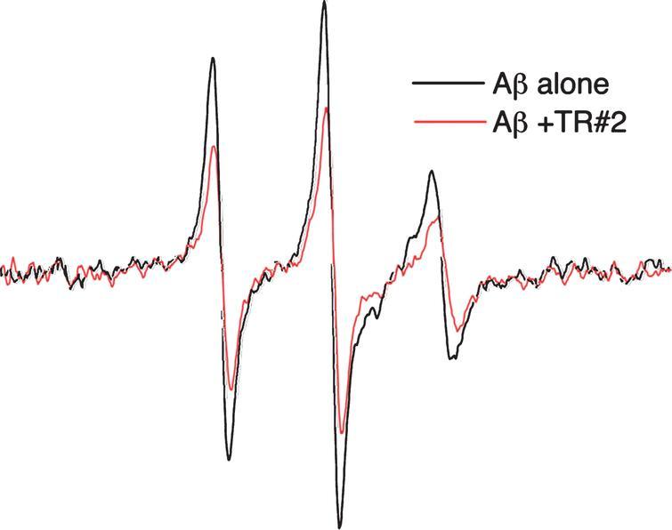 Tomoregulin (TMEFF2) Binds Alzheimer's Disease Amyloid-β