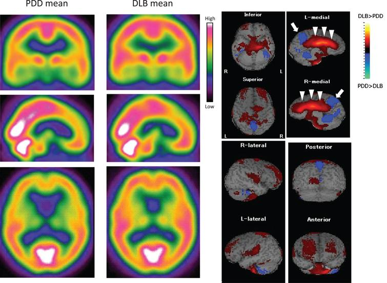 99mTc-ECD SPECT images of the mean values in PDD and DLB patients (left panels). There is a slight decrease of CBF in the frontal lobe in PDD, but similar CBF levels in the posterior lobes of both PDD and DLB. Subtraction image of mean PDD –mean DLB (right panels), showing a higher CBF in whole cingulate gyrus in DLB than PDD groups (arrowheads), and a lower CBF in the precuneus area in DLB (arrow) than PDD.