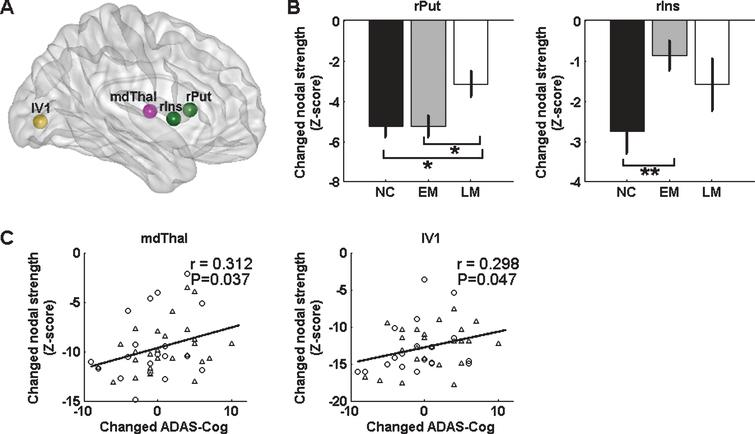 Longitudinal Study of Impaired Intra- and Inter-Network