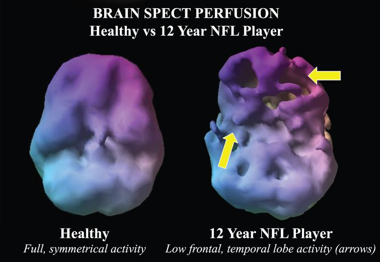 Example of a volume rendered of the undersurface of the brain in normal control compared to a 12-year NFL player. While the control subject has symmetric activity, the NFL player has multiple defects in the inferior frontal and temporal lobes suggestive of concussion related hypoperfusion.
