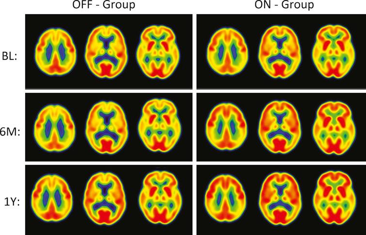 """PET Cerebral glucose metabolism images by treatment groups. Summed Axial Images of standardized update values (SUV). BL, baseline, 6 months or 12 months after continuous bilateral deep brain stimulation (DBS) of the fornix. Representative axial sections show that patients in the """"Off"""" group had stable or declining cortical glucose metabolism over time. In patients assigned to """"On,"""" there were increases in brain metabolism at 6 months, particularly in the temporal and parietal regions, that were sustained at 12 months. The color scale indicates SUVs, with red showing highest, yellow and green intermediate and blue lowest. The patients remained on the same medications from baseline to 12 months while receiving DBS."""