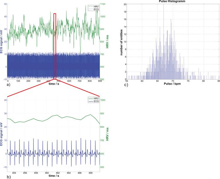 Heart Rate Spectra Confirm the Presence of Autonomic