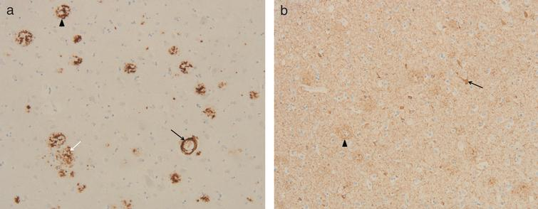Immunohistochemistry in temporal cortex of subject II.4. a) Immunohistochemical staining for Aβ reveals cerebral Aβ angiopathy (black arrow), classical plaques (arrow head), and diffuse plaques (white arrow) in the temporal cortex (10x obj.); b) Immunohistochemical staining for tau (mab AT8) reveals neuropil threads, (pre)tangles (arrow), and neuritic plaques (arrow head) in the temporal cortex (10x obj.).