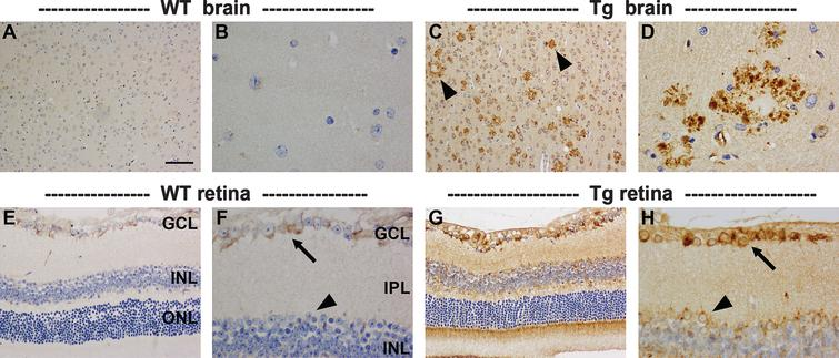 Representative images of AβPP immunolabeling in the brain and retina of 11-month-old WT and Tg mice. In WT parietal cortex (A) and hippocampus (B), AβPP localizes to the cytoplasm of neurons. In Tg mice, neuronal expression of AβPP is higher, and numerous dystrophic neurites surrounding amyloid plaques are present within the parietal cortex (C, arrowheads) and hippocampus (D). In the WT retina, AβPP localizes to the cytoplasm of RGCs (arrow), but is barely detectable within amacrine cells (arrowhead) or other neuronal cell types. In Tg mice, AβPP expression is markedly higher in RGCs (arrow), and is also clearly detectable in other neuronal populations (arrowhead); however, no AβPP-positive dystrophic neurites are evident. Scale bar: A, C=100 μm; E, G=50 μm, B,D,F,H=25 μm.
