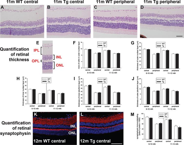 Analysis of retinal thickness and synaptic density in 9–to 12–month-old WT and Tg mice. Representative images of hematoxylin and eosin staining in the central (A, B) and peripheral (C, D) retinas of 11-month-old WT and Tg mice. E) Identification of the retinal layers. F, G) Quantification of the number of rows of cells and the thickness of the outer nuclear layer (ONL). H-J) Quantification of the thicknesses of the inner nuclear layer (INL), inner plexiform layer (IPL), outer plexiform layer (OPL). K-M) Representative images of synaptophysin immunolabeling in the central retinas of 12-month-old WT and Tg mice. Quantification of synaptophysin density in the central and peripheral retina is also shown. In each case, data are expressed as mean±SEM, where n=10 for each age-matched group. Student's unpaired t-tests revealed no significant differences. Scale bars: 50 μm.