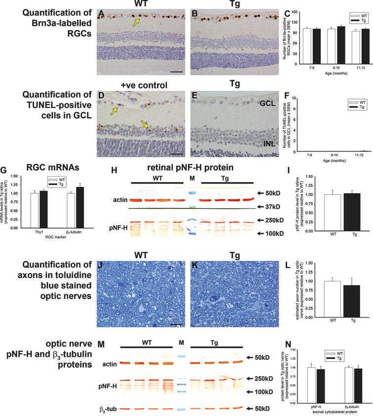 Analysis of retinal ganglion cells (RGC) in 7–to 12–month-old WT and Tg mice. A-C) Representative images of Brn3a immunolabeling, together with quantification of numbers of Brn3a-labeled RGCs. Brn3a localizes to RGC nuclei (yellow arrow). D-F) Representative images of TUNEL labeling in an NMDA-treated retina (+ve control, see arrows) and 12-month Tg retina, together with quantification of numbers of TUNEL-positive cells in the GCL. G) Levels of RGC-specific (Thy1 and β3-tubulin) mRNAs in Tg retinas as measured by qPCR. Data are normalized for GAPDH and expressed relative to WT. H, I, M, N) Expression of RGC axonal proteins in WT and Tg retinas (H, I), and WT and Tg optic nerves (M, N) as evaluated by western immunoblotting. Single bands of the expected molecular weight are apparent. Data are normalized for actin and expressed relative to WT. J-L) Representative photomicrographs of toluidine blue-stained cross-sections of WT and Tg optic nerves from 12-month-old mice, together with estimated axon counts. Data are expressed relative to WT. For all analyses, data are expressed as mean±SEM, where n=10 for each age-matched group. Student's unpaired t-tests revealed no significant differences between WT and Tg cohorts for any of the parameters measured. Scale bar: A, B=50 μm; D, E=25 μm, J, K=10 μm. GCL, ganglion cell layer; INL, inner nuclear layer; β3-tub, β3-tubulin; p-NFH, phosphorylated neurofilament heavy chain.