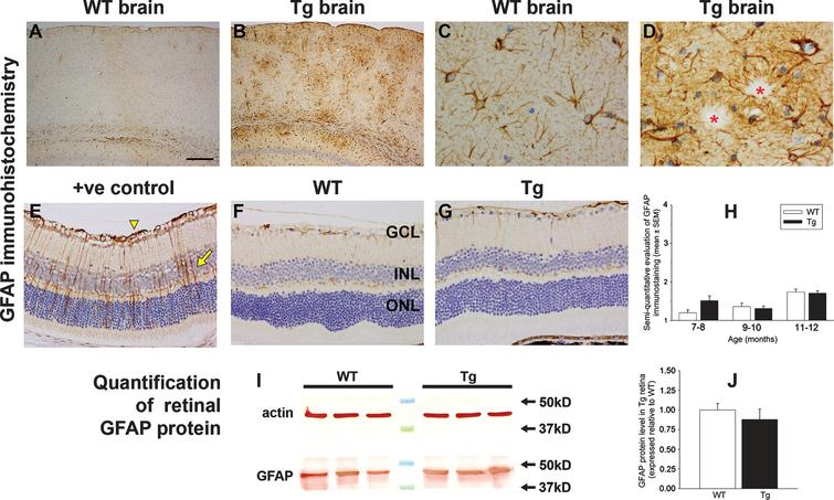Analysis of GFAP expression in WT and Tg mice. Representative images of GFAP immunolabeling in 11-month-old WT and Tg parietal cortex (A, B) and hippocampus (C, D). In Tg brains, numerous GFAP-positive astrocytes are evident surrounding amyloid plaques, signified by red asterisks. E-G) Representative images of GFAP labeling in a retina subjected to branch retinal vein occlusion (BRVO, +ve control), and in 12-month-old WT and Tg retinas. GFAP immunoreactivity is chiefly restricted to astrocytes in the retinas of WT and Tg mice. In contrast, four days after BRVO, a substantial upregulation of GFAP is evident both in astrocytes (arrowhead) and Müller cells (arrow). Note: the area of retina shown is adjacent to the vein occlusion site and not directly affected. H) Semi-quantification evaluation of GFAP grade in WT and Tg retinas. Data are expressed as mean±SEM, where n=10 for each age-matched group. Mann-Whitney test revealed no significant differences between the treatment groups. Scale bar: A, B=250 μm; C, D=25 μm; E-G=50 μm. GCL, ganglion cell layer; INL, inner nuclear layer; ONL, outer nuclear layer. I, J) Expression of GFAP protein in 11–12-month-old WT and Tg retinas as evaluated by western immunoblotting. A single band of the expected molecular weight is apparent. Data (expressed as mean±SEM, where n=10) are normalized for actin and expressed relative to WT. Student's unpaired t-test revealed no significant difference between the treatment groups.