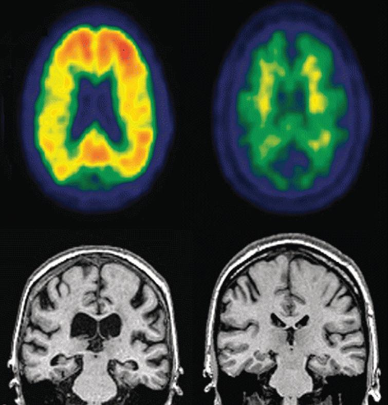 Representative PET (top row) and MRI (bottom row) images of an MCI individual that progressed to AD dementia (left) compared to an MCI individual who did not progress to AD dementia. Notice increased amyloid loading and hippocampal atrophy in the PET images and ventricular enlargement in the MRI images in progressor individual (left). Image reprinted with permissionfrom [55].