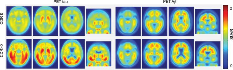 Tau and Aβ PET images in cognitively healthy controls (top-CDR0) and AD patients (bottom-CDR>0). Notice that tau deposition is a better predictor of cognitive decline than Aβ deposition. Figure reprinted with permission from [73]. CDR, Clinical Dementia Rating; SUVR, standardized uptake value ratio