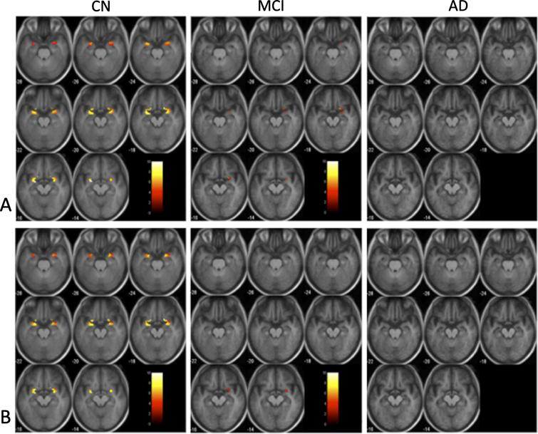 Olfactory activation maps. Activation maps (one sample t-tests, p < 0.001, uncorrected with extent threshold = 6) for both odor (A) and no odor (B). Activation is shown only in the average primary olfactory cortex (POC) from the cognitively normal controls (CN). The color scale indicates the significance of activation. The underlay image for each group is the mean T1-weighted image (Montreal Neuroimaging Institute (MNI) space, Z = –28 to –14) of the subjects within the cohort.