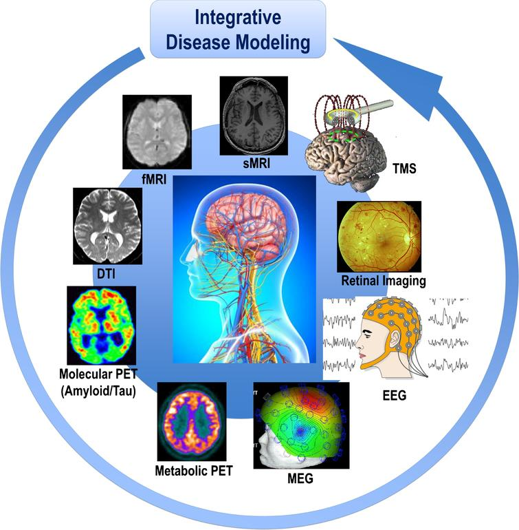 Revolution of Alzheimer Precision Neurology  Passageway of