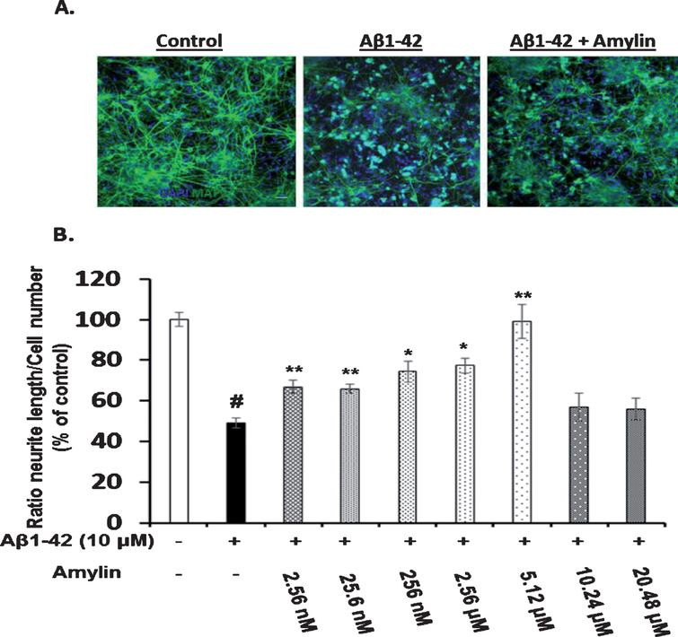 Effects of Amylin Against Amyloid-β-Induced Tauopathy and