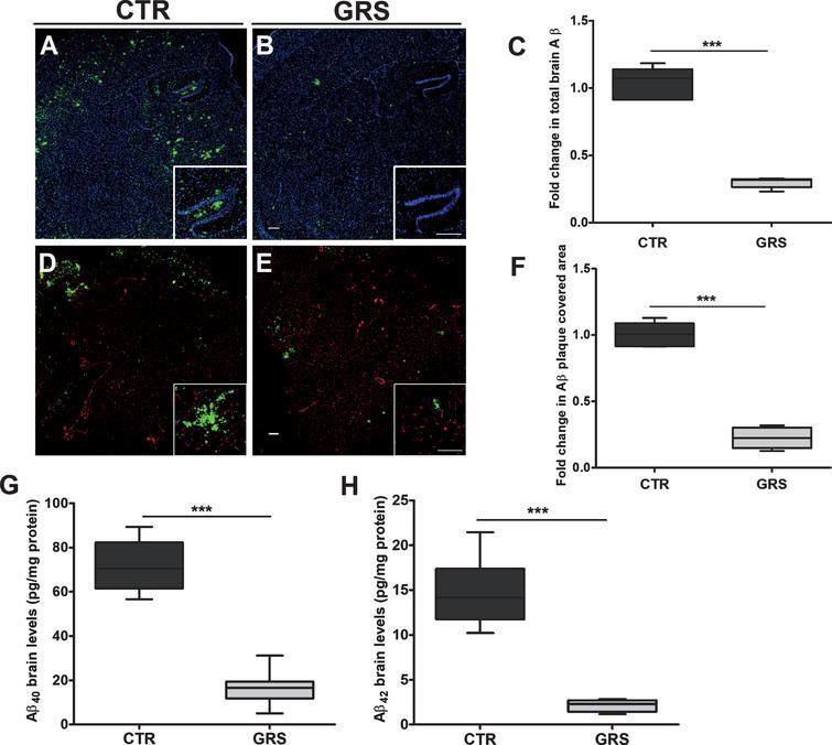 Granisetron Alleviates Alzheimers Disease Pathology In
