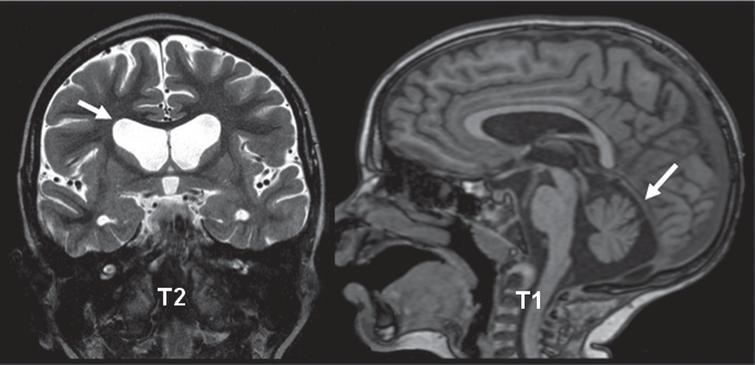 Neuropathological Comparison of Adult Onset and Juvenile