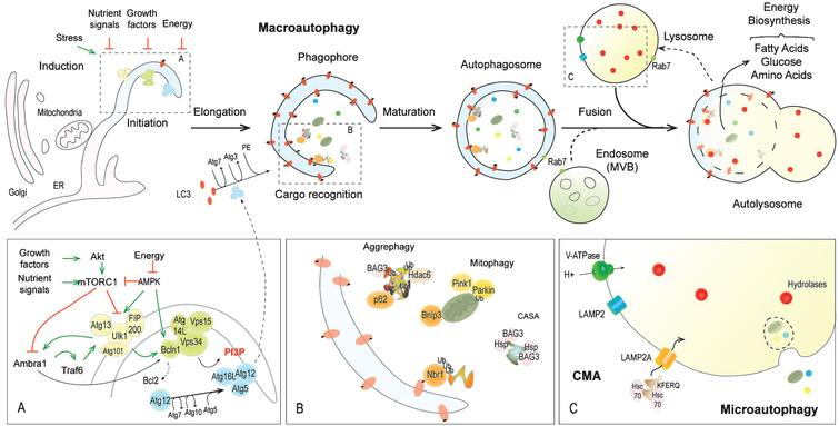 """Get the Balance Right"""": Pathological Significance of Autophagy"""
