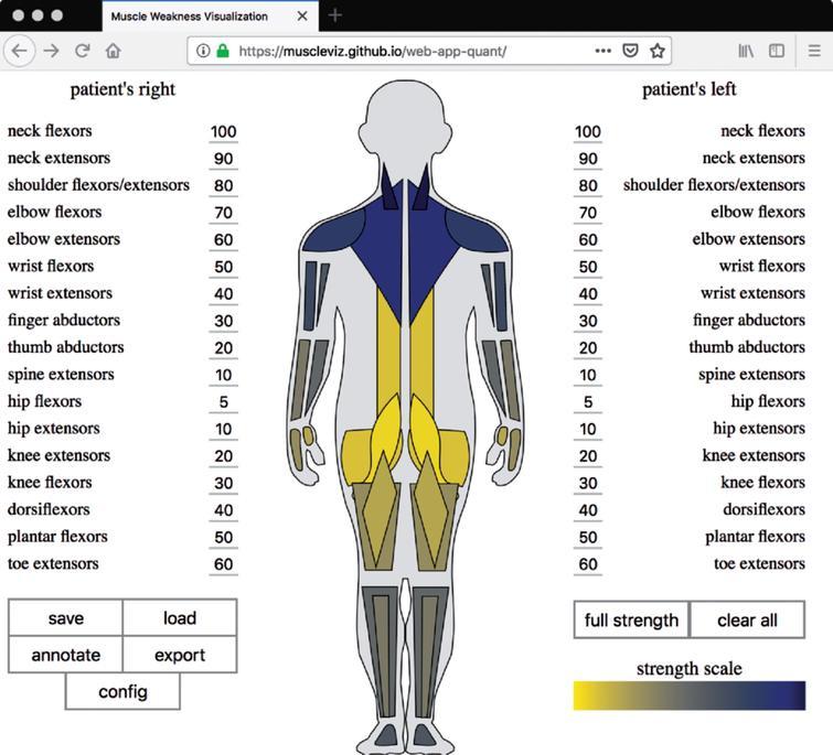 MuscleViz: Free Open-Source Software for Muscle Weakness
