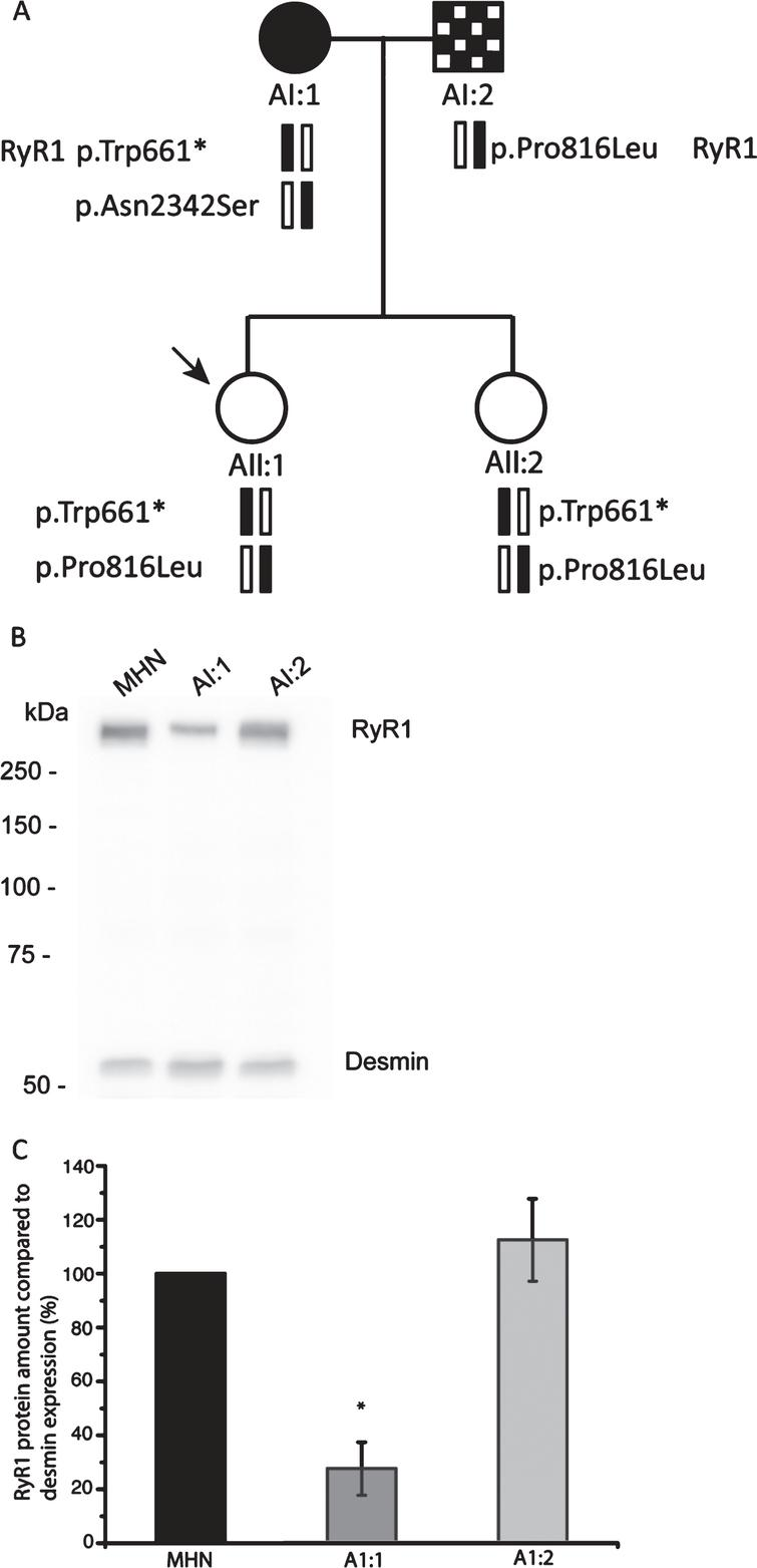 Identification and Functional Analysis of RYR1 Variants in