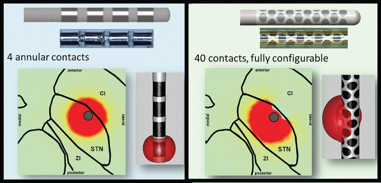 Technological Advances In Deep Brain Stimulation Ios Press