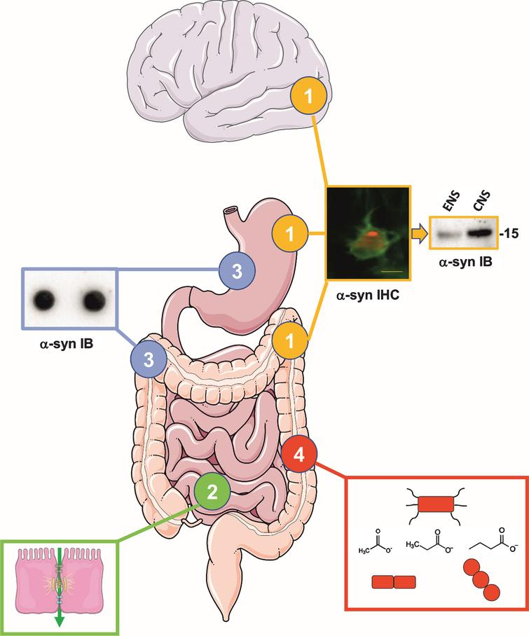 The Gut and Parkinson's Disease: Hype or Hope? - IOS Press