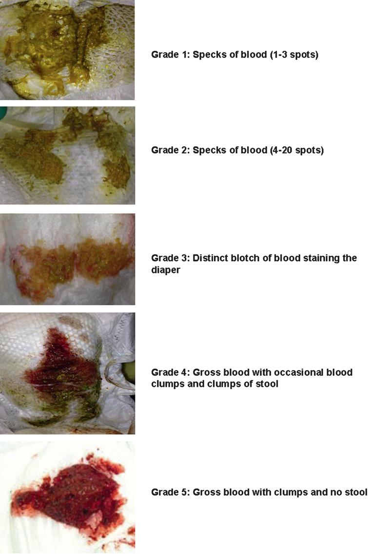 assessment of the severity of visible blood in the stool using a, Skeleton