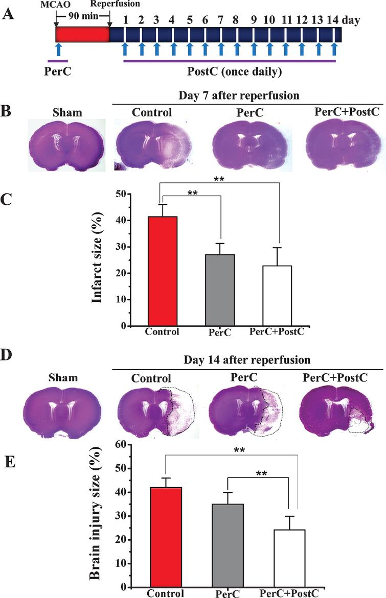 Limb remote ischemic perconditioning in bination with postconditioning reduces brain damage