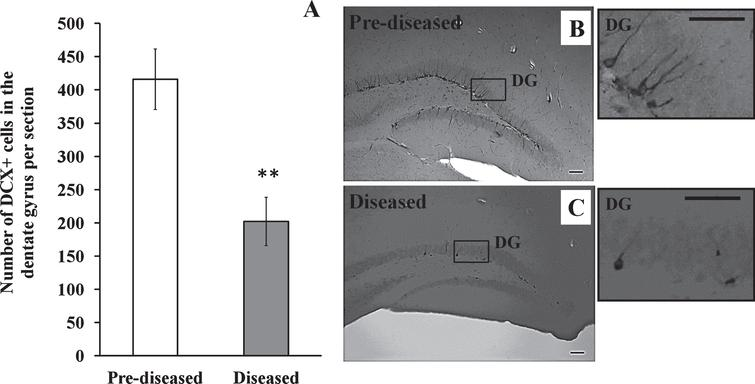 DCX+ cells in the dentate gyrus of the pre-diseased mice and the diseased mice (A) Quantification of DCX+ cells in the dentate gyrus of the pre-diseased mice and the diseased mice. Results were expressed as mean ± SEM., n = 5 for the pre-diseased mice and n = 4 for the diseased mice. Data was analysed by Student's t-test. **p < 0.01 compared with the pre-diseased mice. (B) Representative image showing DCX+ cells in the dentate gyrus of the pre-diseased mice; scale bar 50 μm. (C) Representative image showing DCX+ cells in the dentate gyrus of the diseased mice; scale bar: 50 μm.