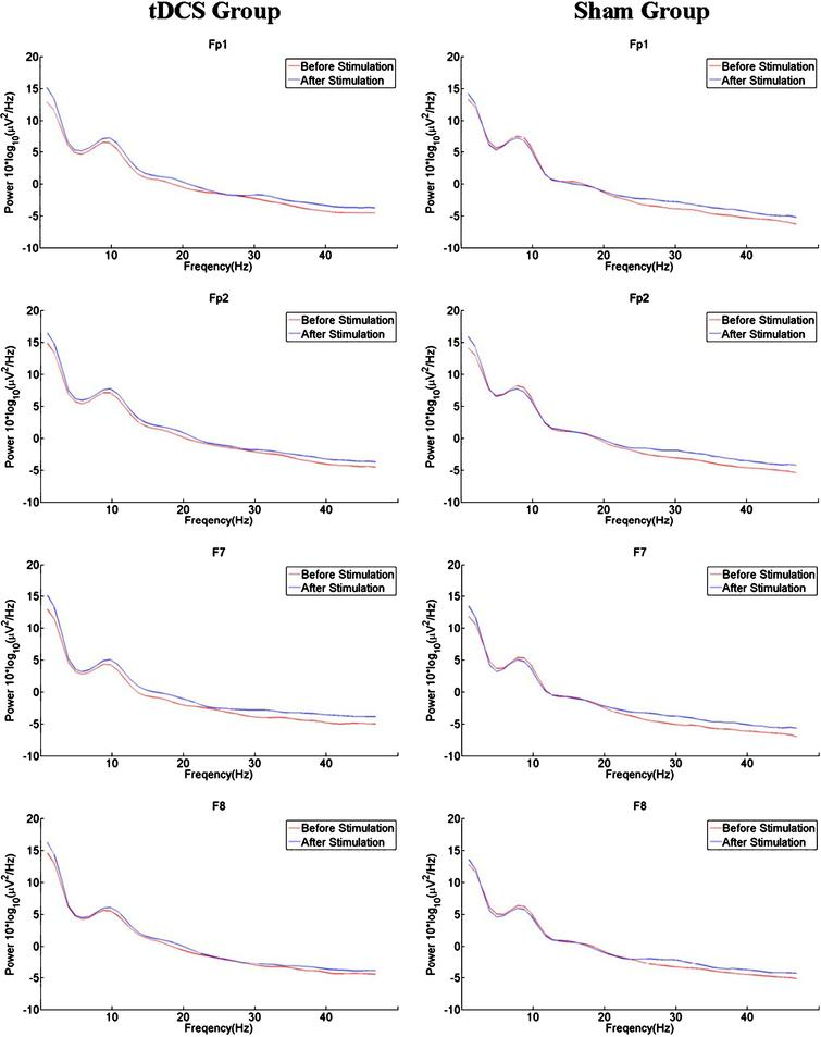 Transcranial direct current stimulation of the primary motor