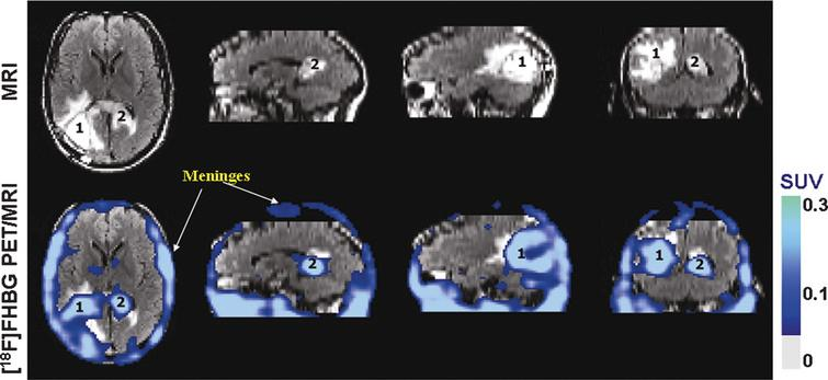 Human stem cell imaging. MRI and PET over MRI superimposed brain images of the patient who had been infused autologous cytolytic T cells expressing IL13 zetakine and HSV1-tk genes. Images were acquired approximately two hours after 18F-FHBG injection. The patient had a surgically resected tumor (1) in the left corner and a new non-resected tumor in the center (2), near corpus callosum of his brain. The infused cells had localized at the site of tumor 1 and also trafficked to tumor 2. 18F-FHBG activity is higher than the brain background at both sites. Background 18F-FHBG activity is low within the Central Nervous System due to its inability to cross the blood brain barrier. Background activity is relatively higher in all other tissues. Activity can also be observed in the meninges. The tumor 1/meninges and tumor 2/meninges 18F-FHBG activity ratio in this patient was 1.75 and 1.57, respectively. Whereas the average resected tumor site/meninges and intact tumor site to meninges 18F-FHBG activity ratio in control patients was 0.86 and 0.44, respectively. Reprinted from Yaghoubi S, et al. Noninvasive Detection of Therapeutic Cytolytic T Cells with 18F-FHBG PET in a Patient with Glioma. Nat Clin Pract Oncol 2009 Jan;6(1):53-8 with permission.