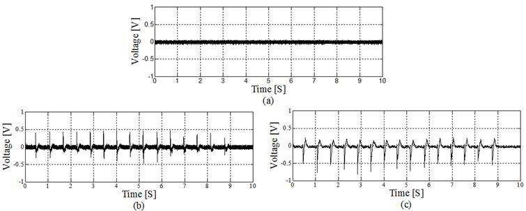 Mastication noise reduction method for fully implantable