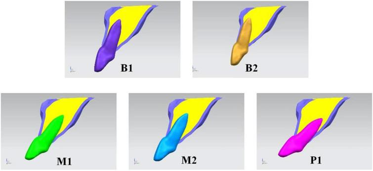 Comparative analysis of the stress distribution in five anatomical ...