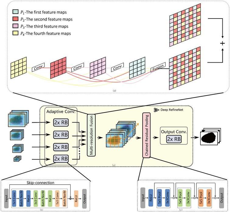 Dense deconvolution net: Multi path fusion and dense