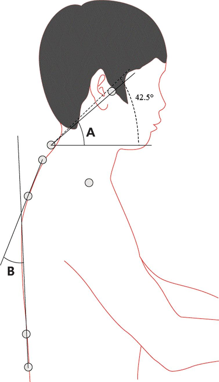 Effect of the craniocervical brace on craniocervical angle