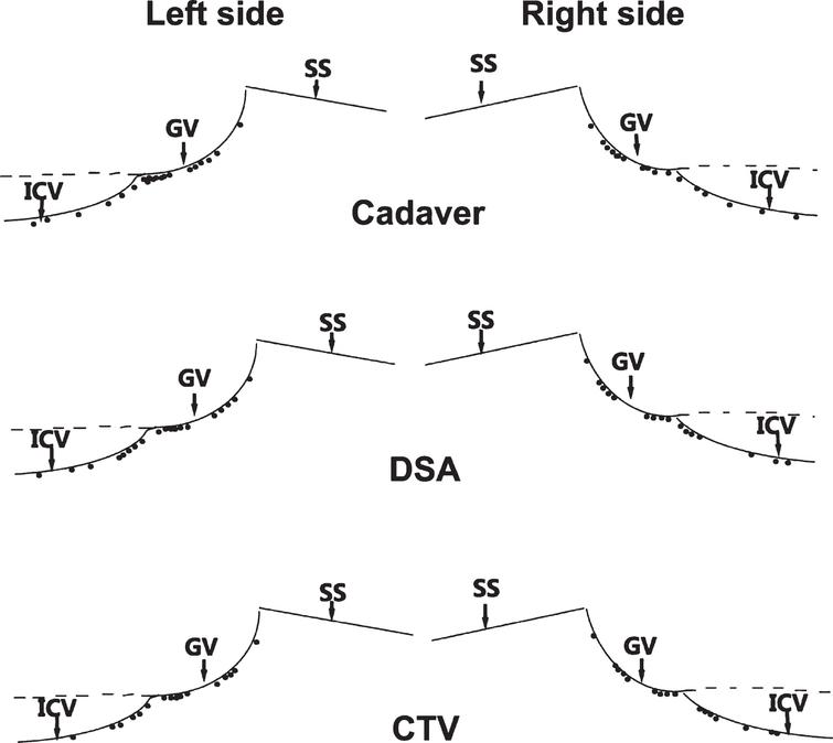 Basal vein in the posterior incisural space: An anatomical ...