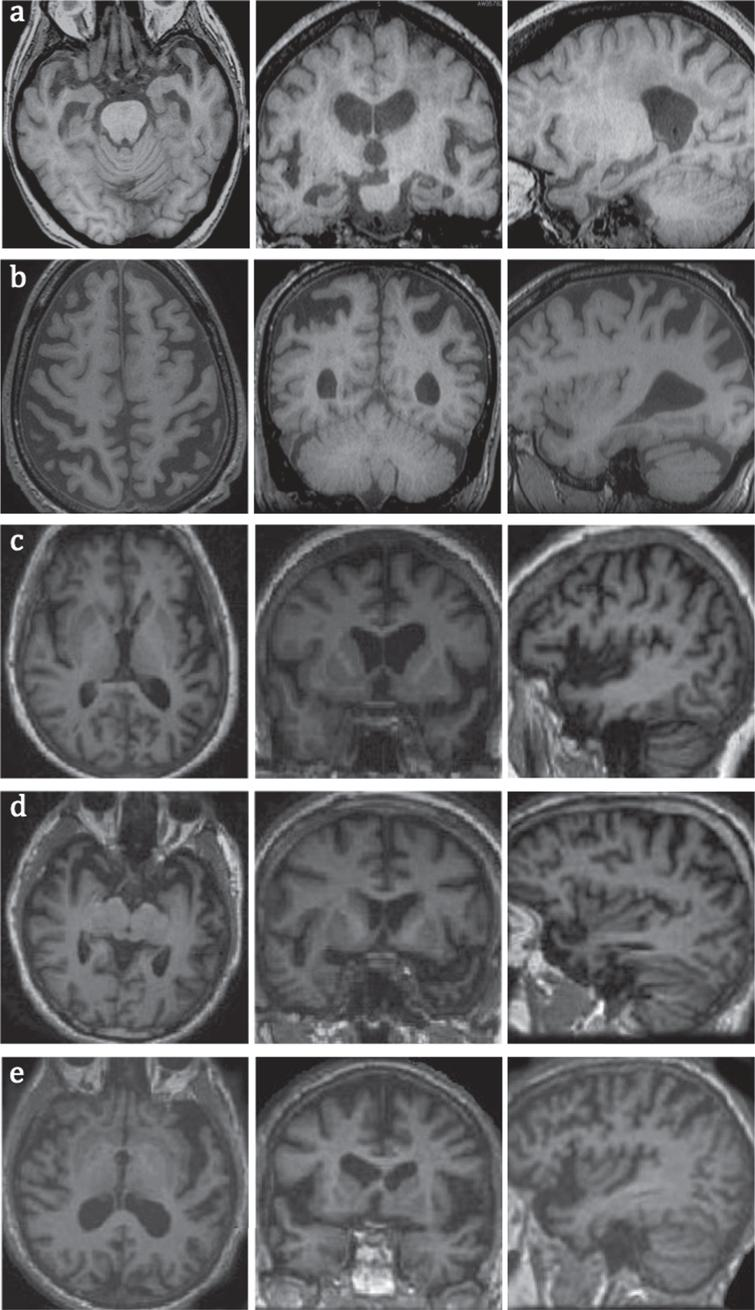 MRI images of common types of dementia in axial, coronal, and sagittal planes, a) early AD with hippocampal and MTL atrophy; b) PCA with superior posterior parietal lobes atrophy; c) logopenic variant of PPA with atrophy in left temporoparietal junction; note more prominent left sided atrophy of posterior and lateral temporal lobes; d) semantic variant of PPA with atrophy in anterior and lateral temporal lobes; e) non-fluent variant of PPA with left frontal operculum and insular atrophy.