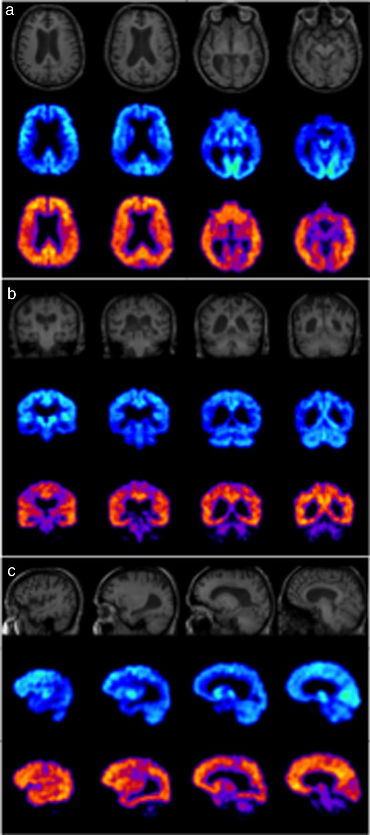MRI (top), FDG-PET (middle), and PiB-PET (bottom) images of a typical AD case in axial (a), coronal (b) and sagittal (c) planes showing hypometabolism in parietal and temporal lobes in FDG-PET and extensive cortical amyloid deposition in PiB-PET.